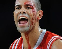 battier bloody